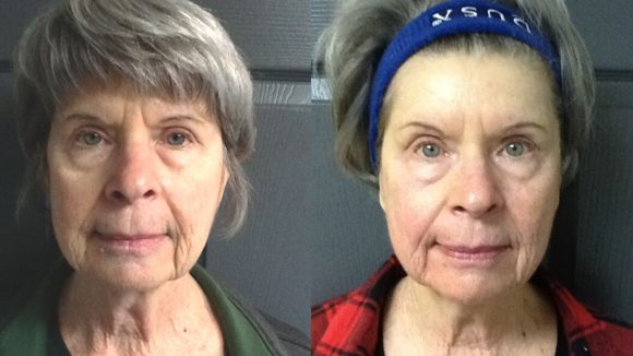 Before & After Tempsure™Envi Skin Care Treatment