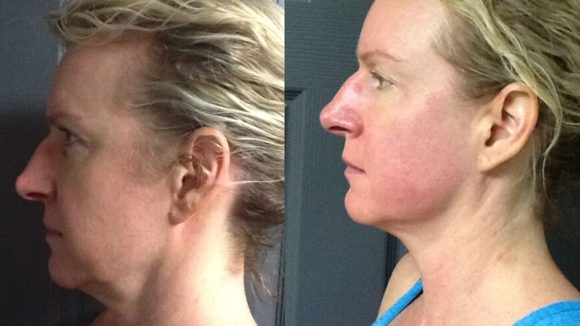 Before & After TempSure Skin Care